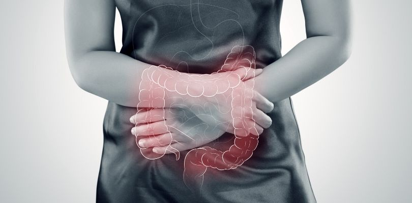 A graphic showing areas of the body where IBS affects.